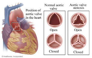 Heart valves diagram