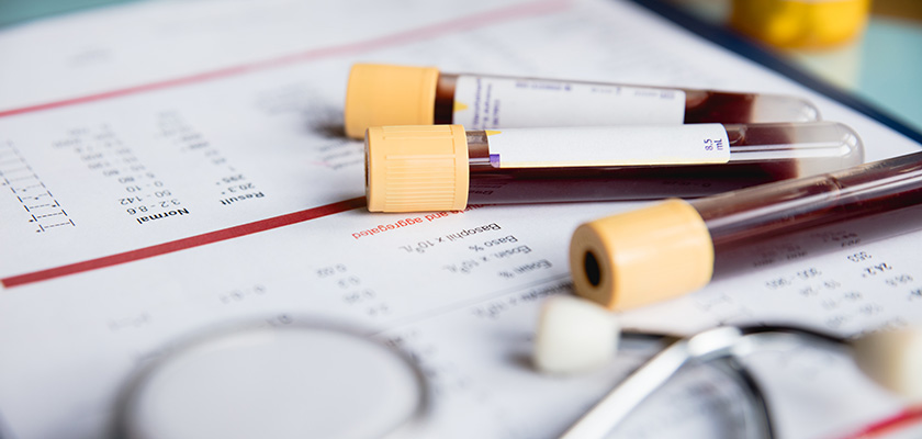 Antibody testing vials