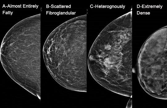 Breast Density Images
