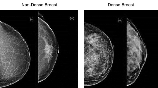 Breast Density Image